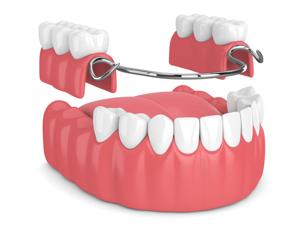Rendering of removable partial denture